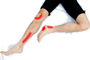 Løpskadene kan melde seg på forskjellige steder, f.eks. i kne, legg, hæl og fot.