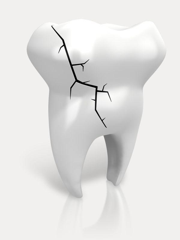 Ødelagt tann