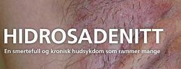 Seminarheading - hidrosadentitt