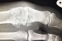 Røntgen: Bildet viser slitasje i grunnleddet i stortåa.