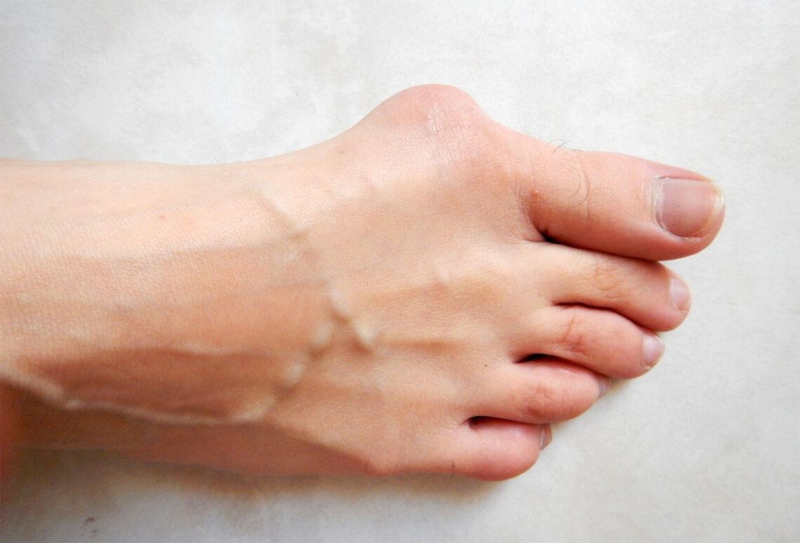 Stortå til besvær: Hallux valgus-plager lar seg vanskelig trene vekk, og om ikke innleggssåler eller romslige sko hjelper, kan operativ behandling vurderes. (Foto: Lamiot, Wikipedia)