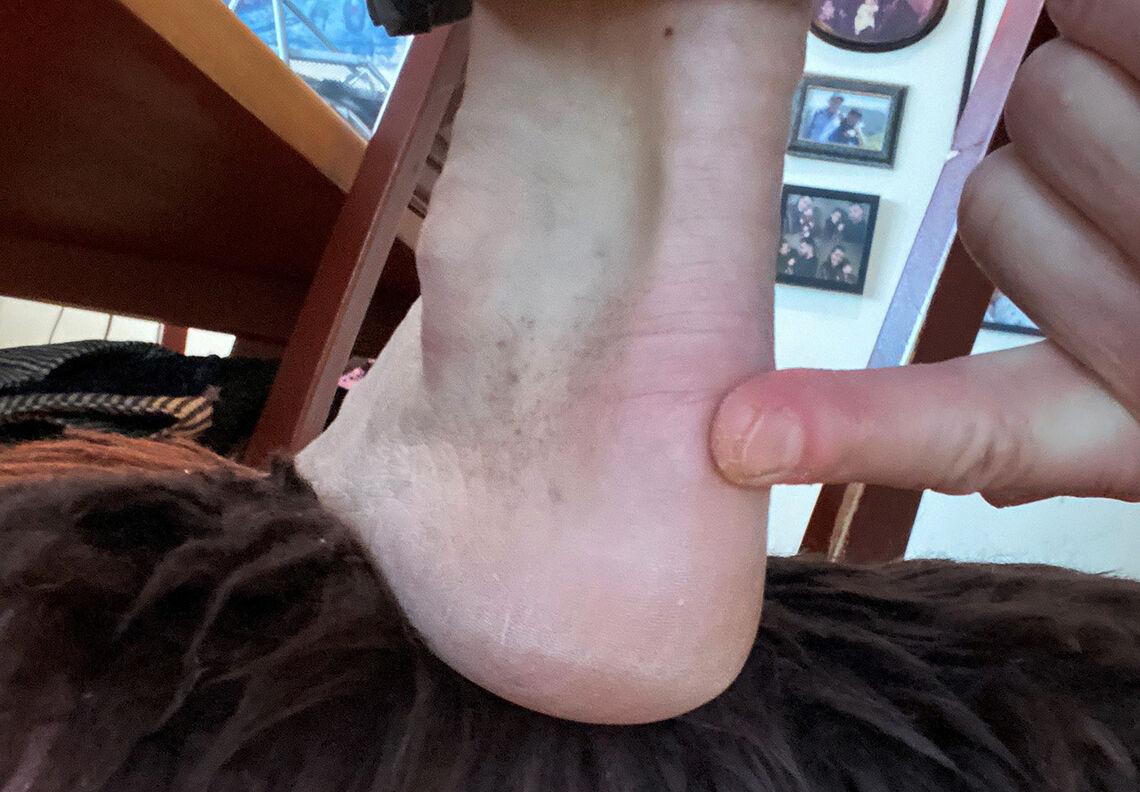Smertested: Senteret for smerten sitter der pekefingeren møter hælen. (Foto: privat)
