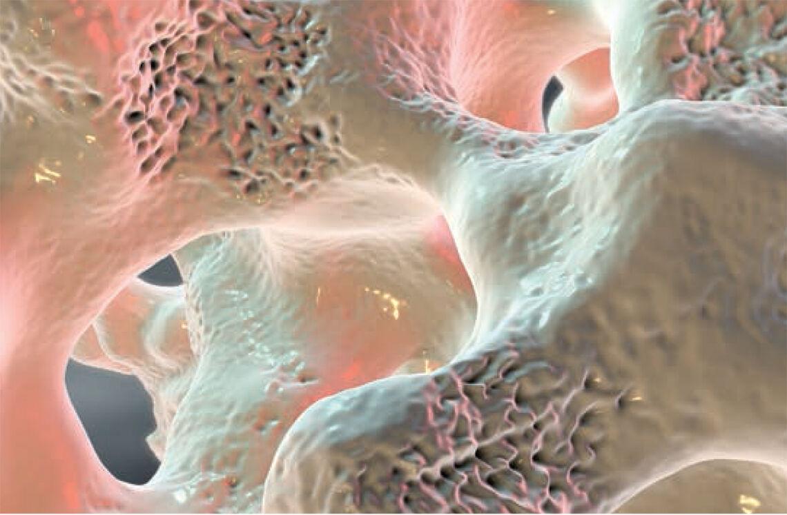 Nedsatt beintetthet: Vi ser svampete beinvev påvirket av osteoporose. (Foto: iStockphoto)